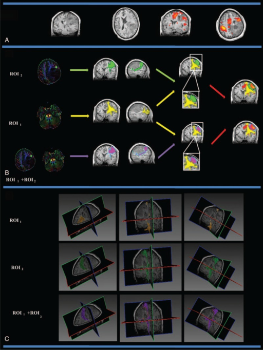 The CST fiber tracking results for patient 12, who was diagnosed with a grade II astrocytoma in the left frontal lobe, which affected the motor cortex and the left internal capsule. (A) The lesion and motor-activated area displayed on a T1-weighted image. (B) The CST fiber tracking results based on different ROI definitions. Yellow, green, and purple represent the CST fiber tracking results obtained using ROI1, ROI2, and ROI1 + ROI2, respectively. The CST fiber tracking results based on an anatomical landmark were distorted near the PMC area. When using the fMRI activation area as a seed region, CST fiber tracking reliably reached the motor cortex, and the spatial relationship between the CST and the tumor can be clearly observed. (C) The 3D visualization of the CST fiber tracking results based on different ROI definitions. CST = corticospinal tract, fMRI = functional MRI, PMC = primary motor cortex, ROI = region-of-interest.