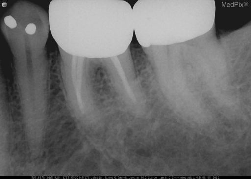 There is loss of the lamina dura around the tip of the tooth root.