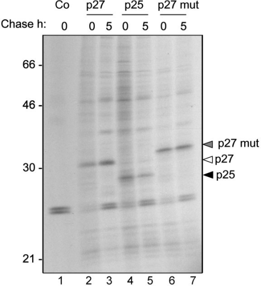 Nef is expressed and is stable in the cytosol of tobacco protoplasts. Tobacco mesophyll protoplasts were transfected with plasmids encoding the p27, p25 and p27 mut Nef variants, or with empty vector (Co). Transfected cells were labelled for 1 h with 35S methionine and cysteine and chased for 5 h with unlabelled amino acids. Cell homogenates were subjected to immunoprecipitation with anti-FLAG antiserum, followed by SDS-PAGE and fluorography. Numbers at left indicate molecular weight markers in kDa.