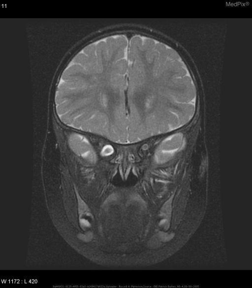 Right sided intraconal solid spherical mass continuous with the optic nerve. Meninges appear to be intact around with sleeve of CSF surrounding the mass. It appears to be confined within the orbit and does not extend to involve the optic chiasm. The signal intensity on T1W is similar to the optic nerves. On T2W images, the mass again has similar intensity to the optic nerves, but has a higher intensity than the musculature. On T1W images after gadolinium, the mass shows fairly uniform contrast enhancement