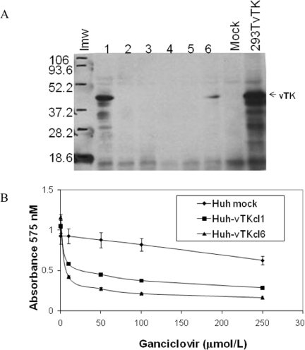 Functional expression of vTK in Huh7 cells.A. Huh7 cells were transfected with pCI-vTK and G418-resistant Huh cellular clones (cl) (1–6) were evaluated for vTK expression (∼43 KDa, arrowheads) by immunoblot analysis. Lmw, low molecular weight markers; 293TvTK, 293T cells transiently transfected with pCI-vTK. B. In vitro cytotoxicity of GCV in vTK expressing cells. HuhvTKcl1 and HuhvTKcl6 cells were incubated with various concentrations of GCV for 72 hours, followed by cell survival quantitation by MTT assay. Data represent the Mean +/− S.D from quadruplicate cell cultures for each GCV dose. Mock, Huh cells that underwent stable selection after transfection with empty pCIneo vector.