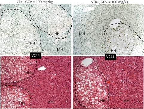 Histopathological changes induced by vTK/GCV in chimeric SCID/uPA mice.Engrafted human hepatocytes (HH, bordered by dashed line) in paraffin embedded liver sections from experimental mice (Table 2) were identified by hybridization with fluoresceinated Alu probe (top). Serial sections were analyzed by H& E staining (bottom). MH; mouse hepatoctyes. Original magnification ×100.