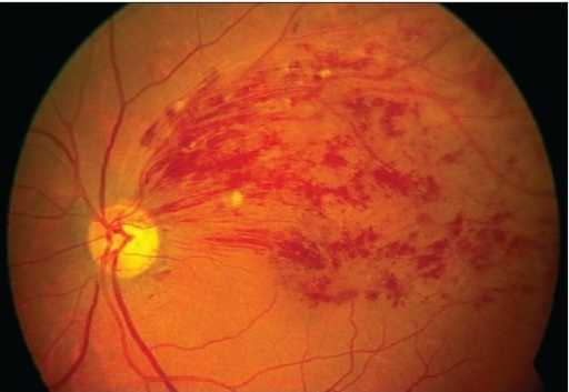 Color fundus photograph at initial presentation showing ...