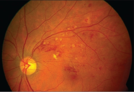 Fundus photograph showing partial resolution of branch ...