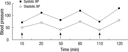 Changes in blood pressure following an oral minocycline challenge test. Arrows indicate times at which drugs were administered, including epinephrine, antihistamine, and systemic corticosteroids.
