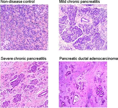 Histology of chronic pancreatitis, pancreatic adenocarc ...