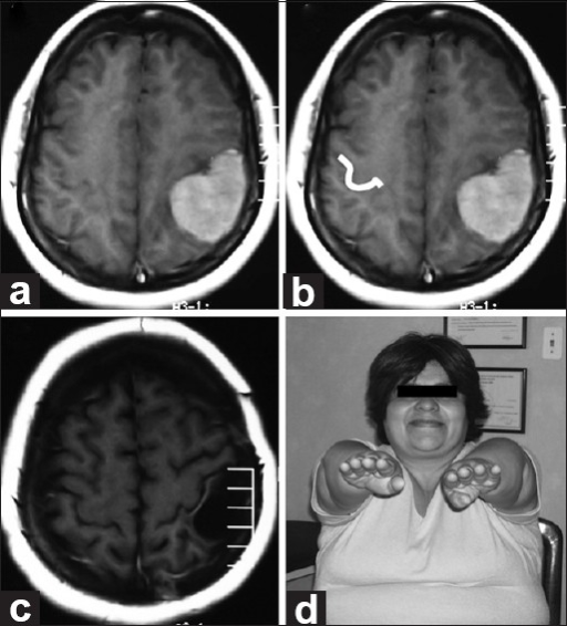 A And B Pre Op Axial Mri Imaging Reveals An Extra Ax Open I