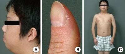 gross findings. (a) micrognathia, (b) clubbing fingers, | open-i, Skeleton