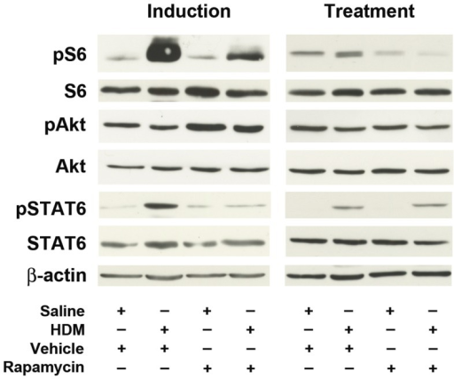 Rapamycin attenuates mTORC1 effectors.Phosphorylation of the mTORC1 effector, S6 (phospho-S6 Ser 235/236), or the mTORC2 effector, Akt (phospho-Akt S473), was assessed by Western blot analysis. The phosphorylation of STAT6 (phospho-STAT6 Y641) was determined as a control for activation of Th2 pathways. A representative blot from 5 experiments is shown.