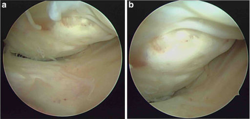 Diagnostic arthroscopy (a, b) showing severe comminution with depressed articular cartilage in the fractured area (25 × 20 mm.).