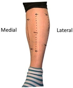 Photograph of patient's leg after surgery. The three fasciotomy incisions used to access all compartments are illustrated. Continuous black lines indicate skin incisions, and dotted lines between arrows indicate the extent of the subcutaneous fascia splitting: approximately 20 cm in the anterior, lateral, and superficial posterior compartments and approximately 10 cm in the deep posterior compartment.