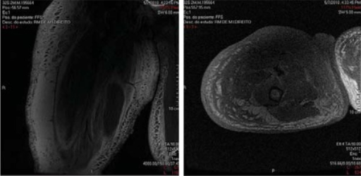 Magnetic resonance imaging showed a volumetric increase in the diameter of theentire right thigh associated with severe edema of the entire subcutaneous tissueand a heterogeneous, hypodense area in the proximal right thigh
