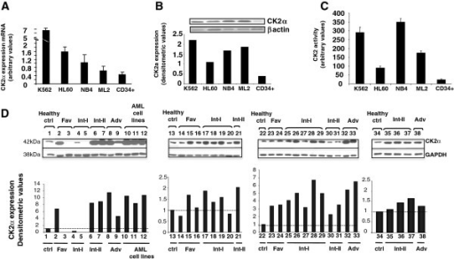 CK2 expression and activity in AML cells. (A) Real-time quantitative PCR analysis of CK2α mRNA expression in a panel of AML cell lines (K562, HL-60, NB4, ML2) and in normal CD34+ hematopoietic stem cells. (B) Top: representative western blot analysis of CK2α protein expression in a panel of AML cell lines (K562, HL-60, NB4, ML2) and in normal CD34+ hematopoietic stem cells; bottom: corresponding densitometric analysis. (C) In vitro kinase assay measuring CK2 kinase activity against a synthetic peptide using cell lysates from AML cell lines and normal CD34+ hematopoietic stem cells. (D) Western blot analysis of CK2α expression in normal - or patient derived AML - peripheral blood or bone marrow cells. Thirty-one AML cases were divided according to the European Leukemia Net classification of risk groups in favourable, intermediate-I, intermediate-II and unfavourable. Immunoblots are shown on the upper panel while the corresponding densitometric analysis is shown on the lower panel.