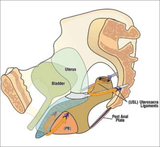 TFS repair of rectocele. The TFS sling restores the anatomy of the posterior vaginal wall by shortening the uterosacral (USL) ligaments and fascia, and re-approximating the laterally displaced perineal body (PB).