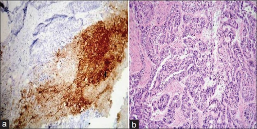 (a) Histopathological image shows poorly differentiated oral squamous cell carcinoma: VEGF staining intensity 3× (IHC stain, ×100). (b) Histopathological image shows poorly differentiated oral squamous cell carcinoma. (H&E stain, ×100)