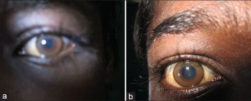 Kayser-Fleischer ring in (a) left eye and (b) right eye