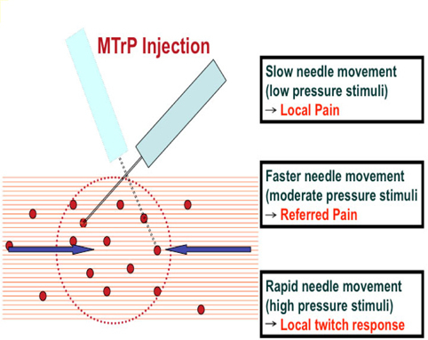 Stimulation of a sensitive locus with needle tip during MTrP injection to elicit pain, referred pain or local twitch response.
