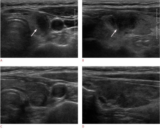 A 63-year-old woman with lymphocytic thyroiditis (LT).Transverse (A) and longitudinal (B) ultrasonograms show a 2.0-cm mass with a taller-than-wide shape, irregular border, and marked hypoechogenicity with heterogeneous parenchyma in the left thyroid gland (arrows). Ultrasonography-guided fine-needle aspiration cytology revealed LT. The mass had disappeared on follow-up transverse (C) and longitudinal (D) ultrasonography after one year.