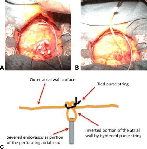 "Illustration of the ""lead inverting stitch"". A. Purse-string suture applied around the perforating lead. B. Atrial lead-tip severed with heavy scissors followed by inversion of the remnant atrial lead fragment and surrounding scar beneath the tightened purse-string. Note: the epicardial pacing lead is already in place. C. Cross-section illustration of the severed and inverted atrial lead following tightening of the purse string around the lead (i.e., ""lead inverting stitch"")."
