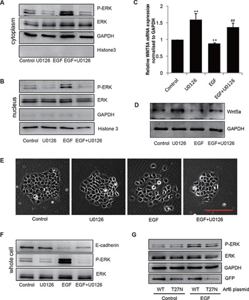EGF/Arf6 reduces Wnt5a expression and promotes cell EMT through P-ERK(A–F) Cells were incubated for 2 h in the absence or presence of 10 μmol/L U0126 prior to EGF treatment (20 ng/mL for 48 h), the extracts of (A) cytoplasm and (B) nucleus were subjected to immunoblotting analysis to detect P-ERK. GAPDH or Histone 3 was as control for cytoplasm or nucleus part. (C) Total mRNA or (D) protein extracts for Wnt5a were analyzed by qPCR and immunoblotting. GAPDH was used as control. **P < 0.01 in the cultures with EGF or U0126 relative to the cultures without EGF. ##P < 0.01 in the cultures with EGF plus U0126 relative to the cultures with EGF alone. (E) The cell images were captured by phase-contrast microscopy. Scale bar, 100 μm. (F) The extracts of whole cell protein were subjected to immunoblotting analysis to detect E-cadherin. (G) SGC-7901 cells transfected with either an empty vector or an Arf6-T27N expression vector were stimulated with 20 ng/mL EGF for 48 h and ERK activity was examined.