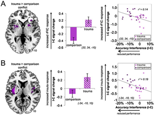 Trauma-exposed youth show greater (A) right fronto-insular cortex (rFIC) and (B) left mid-posterior insula response to conflict, that correlates with greater performance decrements. Fronto-insular response to conflict is exaggerated in trauma-exposed youth, especially those that demonstrate large interference values (incongruent − congruent trials [I − C]). Clusters are significant at pFWE < 0.04, small-volume corrected. X, Y, Z coordinates are given in MNI convention. Error bars represent standard error.