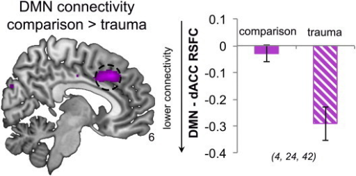 Altered connectivity between the salience network (SN) and the default mode network (DMN) in trauma-exposed youth. Trauma-exposed youth show lower DMN connectivity with the right dorsal anterior cingulate cortex (dACC), a key SN node. Resting-state functional connectivity is depicted as Fisher-transformed r values. Results are significant at pFWE = 0.011, small-volume corrected. Coordinates are given in MNI convention. Error bars represent SEM.