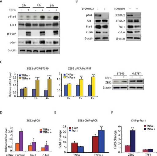 TNFα induces AP-1 activation and ZEB2 expression in TNBC cells(A) Western blot analysis of p-Fra-1, Fra-1, p-c-Jun, c-Jun, and β-actin (as a loading control) in BT549 cells treated with or without TNFα (10 ng/ml) for 2, 4 and 6 hours. (B) TNFα mediates Fra-1 and c-Jun expression via the PI3K/Akt and MAPK/ERK pathways. Western blot analysis of pAkt, Akt, pERK1/2, ERK1/2, Fra-1, c-Jun and β-actin (as a loading control) in BT549 cells pretreated with LY294002 (25 μM) or PD98059 (25 μM) for 6 hours, followed by stimulation with TNFα (10 ng/ml) for 6 hours. (C) TNFα induces ZEB2 expression at both the mRNA and protein levels in BT549 and Hs578T cells. ZEB2 mRNA levels were determined by qPCR after treatment with or without TNFα (10 ng/ml) for the indicated times. Data are shown as means with SD. **p < 0.01, ***p < 0.001 compared with TNFα minus (n = 3). The protein levels of ZEB2 after 6 hours of treatment with TNFα were analyzed by Western blot. β-actin was used as a loading control. (D) Depletion of Fra-1 or c-Jun markedly impaired the induction of ZEB2 gene expression by TNFα. Values are mean ± SD (n = 3). *p < 0.05 compared with control siRNA. (E) ChIP-qPCR analysis showing increased binding of Fra-1 and c-Jun to ZEB2 following TNFα treatment. Columns, mean fold enrichment of Fra-1 or c-Jun relative to IgG; bars, SD (n = 3). *p < 0.05, **p < 0.01 compared with TNFα minus. (F) ChIP-qPCR analysis showing increased binding of phospho-Fra-1 to ZEB2 following TNFα treatment. TFF1 is used as a negative control. ChIP was performed with antibody against phospho-Fra-1. Columns, mean fold enrichment of phospho-Fra-1 relative to IgG; bars, SD (n = 3). **p < 0.01 compared with TNFα minus.