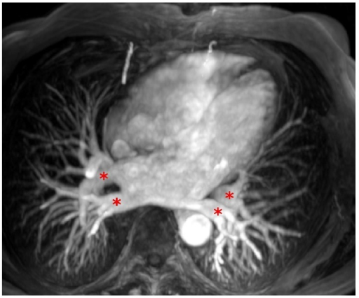 Normal anatomy of four pulmonary veins (red stars) on three-dimensional contrast-enhanced magnetic resonance angiography.