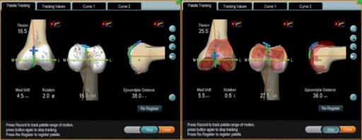 Screenshot of patellar tracking in the arthritic knee (left panel) and after TKA (right panel).