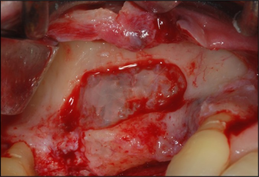 A trap door made in the lateral sinus wall.