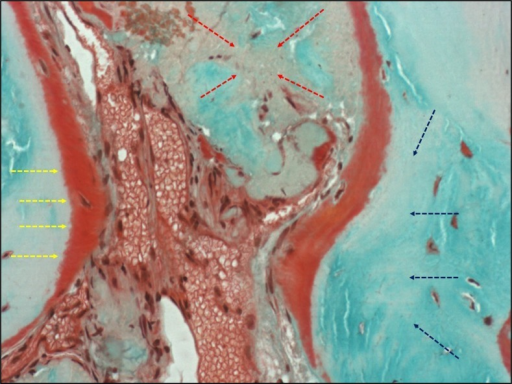Trichrome stain of osteoid (original magnification x40). Red osteoid rim (yellow arrows) green viable bone (blue arrows) and graft material (red arrows).