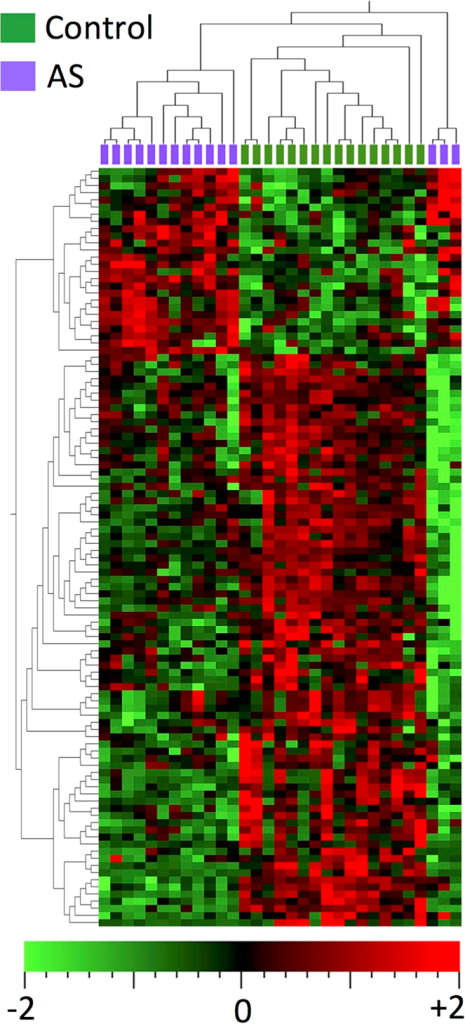 Heatmap of differentially expressed miRNAs in aortic stenosis (adjusted p-value <0.05).Hierarchical clustering shows clear grouping according to presence or absence of aortic stenosis. The aortic stenosis samples to the right of the figure are outliers on the principal components analysis plot (Supplementary Figure 1 and Supplemental movie), but still cluster with other aortic stenosis samples on the first principal component. The miRNAs are listed in Supplementary Table 1.