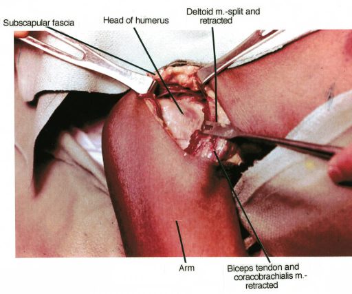 subscapularis fascia; humerus; deltoid muscle; biceps brachii tendon; coracobrachialis muscle