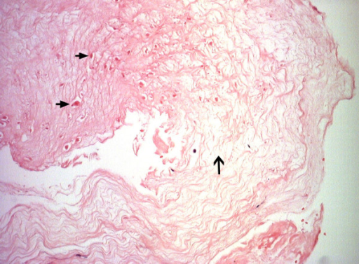 Histology of the tendinopathic tendon at repair (Transverse plane, × 20 Magnification). Revealing scanty hypocellular degenerate tendon displaying separation of collagen fibrils (solid arrows) and disorganisation. Small pieces of fibrin (hollow arrow) were also present and there was no inflammation or neovascularisation.