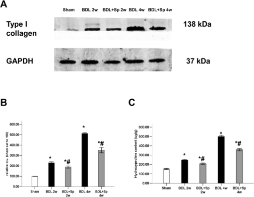 Spironolactone (Sp) downregulates type I collagen expression and reduces hydroxyproline content in BDL rats.(A) Spironolactone downregulates type I collagen protein expression in the livers of BDL rats, as shown by Western blot analysis (B). Sprionolactone reduces hydroxyproline content in rat livers (C). *p<0.05 compared to the Sham group. #p<0.05 compared to the BDL groups.