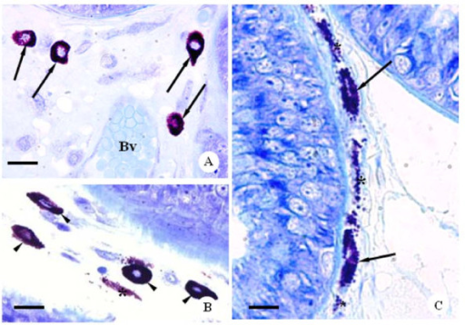 Photomicrographs of ventral prostate sections of CBZ-treated rats at different ages. Toluidine blue method. A: Part of ventral prostate sections of the CBZ93 rat showing the fibromuscular stroma with mast cells (arrows) around blood vessel (Bv). Bar: 20 μm. B and C: Ventral prostate sections of the CBZ63 rats. Note mast cells with fine cytoplasmatic granules (4b, head arrows), mast cells in degranulation process (4c, arrows) and cytoplasmatic granules (asterisks) distributed into the fibromuscular stroma. Bar: 18 μm and 11 μm, respectively.