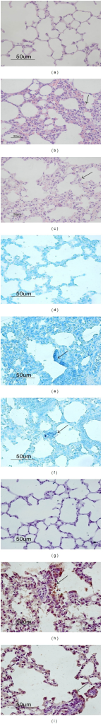 (a)–(c) H&E staining of lung tissue from infected or mock-infected mice. (a) Tissue from Group E (the mock-infected group) showed the normal histology of the mouse lung. (b)-(c) Tissues from Group D (b) 14 or (c) 21 days postinfection show mononuclear cell infiltration and edema of alveolar epithelia (arrows). (d)–(f) In situ hybridization with MCMV-specific probes showed that MCMV DNA was present in epithelial cells (arrows) of the alveoli in the lung tissue of mice (e) 14 or (f) 21 days postinfection, but not in (d) mock-infected mice. (g)–(i) Immunohistochemical staining using anti-MCMV gB monoclonal antibodies revealed viral protein gB (yellow-brown color, indicated by arrows) appeared in the alveolar epithelia (h) 14 and (i) 21 days postinfection. (g) We observed no staining in the lung tissue of mock-infected mice. Bar = 50 μm.