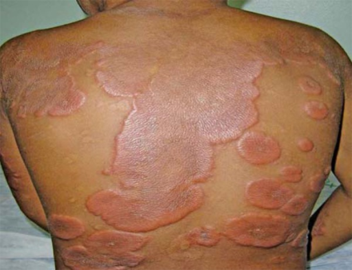 Clinic - Acute phase. Indurated well-circumscribed erythematous plaques on theback