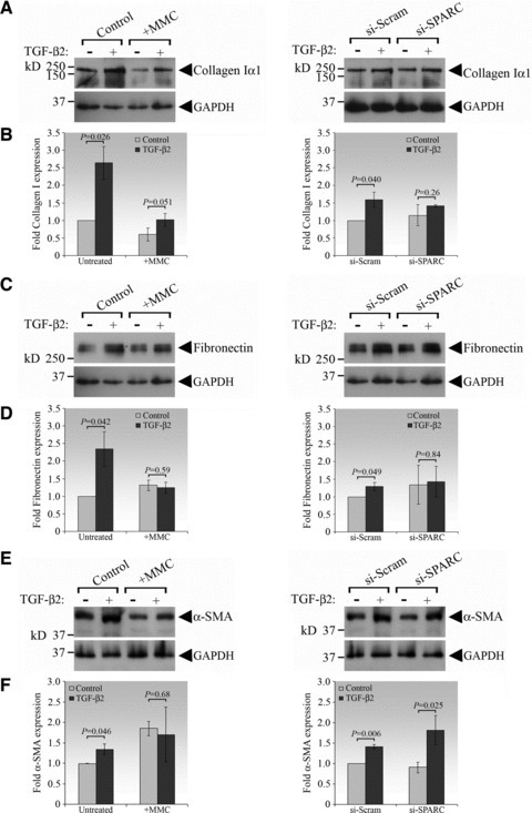 Collagen I and fibronectin protein expressions were not induced in SPARC knockdown HTFs in response to TGF-β2 but α-SMA expression remained inducible. (A) HTFs were treated with MMC (left panel) or transfected with siRNAs (right panel), with or without TGF-β2, for 72 hrs before being analysed for collagen I protein abundance by immunoblotting for collagen Iα1 and GAPDH (loading control). The data shown are representative of three independent experiments. (B) Densitometric analysis of immunoblots from three independent experiments represented in (A). Data are presented as mean fold induction ± S.D. relative to their respective controls (untreated: left panel; si-Scram–transfected HTFs: right panel) from three independent experiments. The GAPDH level was used for normalization. The P value for each comparison is indicated above the bars. (C) HTFs were subjected to the indicated treatments as in (A) and analysed for fibronectin expression. The data shown are representative of three independent experiments. (D) Densitometric analysis of immunoblots from three independent experiments represented in (C). (E) HTFs were subjected to the indicated treatments as in (A) and analysed for α-SMA protein expression. The data shown are representative of three independent experiments. (F) Densitometric analysis of immunoblots from three independent experiments represented in (E).