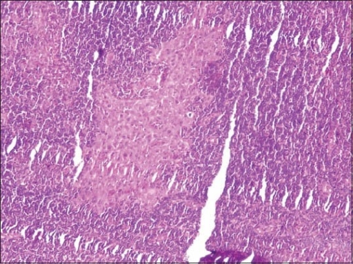 Tumor islands can be seen in frozen section of lymphnodes (H&E stain, ×100)