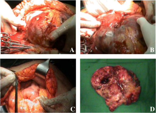 Images of the tumor. (A) The very large tumor; (B) tumor adhering to the small bowel loops; (C) gastrojejunostomy; and (D) the surgical specimen.