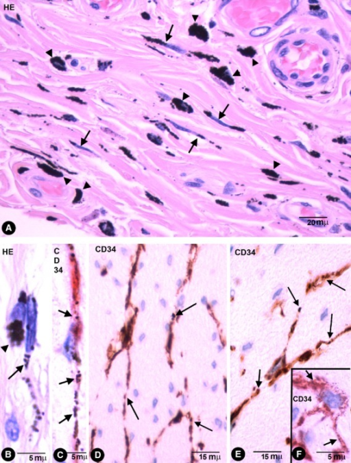 Stromal cells in enteric wall tattooed with India ink. (A) Characteristics of stromal cells (arrows) and macrophages (arrow-heads) in the submucosa with engulfed pigmented particles in an haematoxylin and eosin stained section. Note that the intracellular pigment in some stromal cells shows a linear distribution drawing their processes. (B) Detail of a stromal cell (arrow) and a macrophage (arrowhead) with endocytozed particles. (C) A bipolar CD34+ phTC with intracellular pigment (arrows) in submucosa. (D–F) bipolar and Multipolar CD34+ phTCs with intracellular pigment (arrows) between SMCs of muscular propria (D and E) and myenteric plexus ganglia (F).