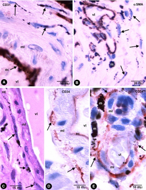 Stromal cells in intestinal wall tattooed with India ink. (A and B) The stromal cells containing endocytozed particles (arrows) are negative for CD31 (A) and for αSMA (B). Endothelial cells are stained by CD31 (A) and cells in the vessel media layer by anti-αSMA (B). (C) Stromal cells with intracellular pigment (arrows) around a vessel in an haematoxylin and eosin stained section. (D and E) CD34+ phTCs with intracytoplasmic India ink particles (arrows) around different-sized vessels. vl, Vessel lumen; ec, Endothelial cell; ml, Medial layer; m, Macrophage.
