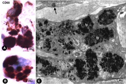 Macrophage characteristics. (A and B) CD68+ macrophages with abundant thick granules of India ink pigment in the intestinal wall. (C) Ultrastructural characteristics of macrophages in a pigmented melanocytic naevus. Note the abundant particles in lysosomes (ly). In the upper part of the image, a telopode of a phTC with an endocytozed melanosome (arrow).