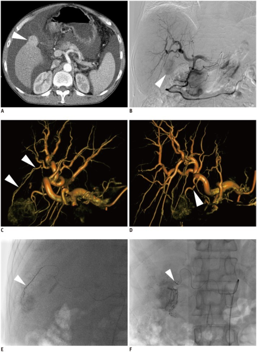 47-year-old man with hepatocellular carcinoma and Child-Pugh C class disease.A. Axial CT scan shows exophytic enhancing nodule (arrowhead) in gallbladder bed. B. Celiac angiography shows tumor staining (arrowhead). C. Volume-rendering image of C-arm cone-beam CT with left anterior oblique projection of 30 degree shows tumor-feeding artery from S5 hepatic artery (arrowheads). D. Volume-rendering image of C-arm cone-beam CT with right anterior oblique projection of 20 degree and cranial oblique projection of 15 degree shows tumor-feeding artery from deep cystic artery (arrowhead). E. Spot image during chemoembolization shows tip (arrowhead) of microcatheter advanced into S5 hepatic artery. F. Spot image during chemoembolization shows tip (arrowhead) of microcatheter advanced into deep cystic artery.