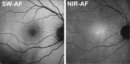 Short-wavelength (SW-AF) and near-infrared (NIR-AF) fundus autofluorescence. Images were obtained with 488 nm (SW) and 787 nm (NIR) excitation.