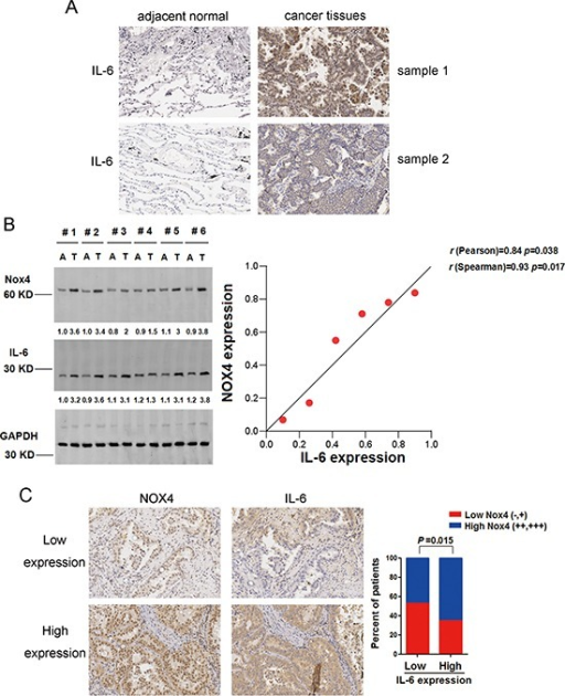 NOX4 is positively correlated with IL-6 levels of NSCLC(A) IHC staining indicating that IL-6 expression is upregulated in human NSCLC compared with adjacent normal lung tissues. (B) Western blotting analysis of NOX4 expression in 6 paired primary NSCLC tissues (T) and matched adjacent nontumor tissues (A). GAPDH was used as a loading control. (C) NOX4 expression associated with IL-6 expression in 152 primary human NSCLC specimens. Representative specimens with low and high levels of NOX4 are shown.