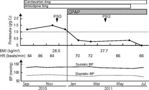 Changes of proteinuria, BMI, HR and BP before and after CPAP initiation. Proteinuria clearly decreased after CPAP initiation without any changes of medication. PSG was performed before and after CPAP initiation. HR and BP were measured at home in the morning.