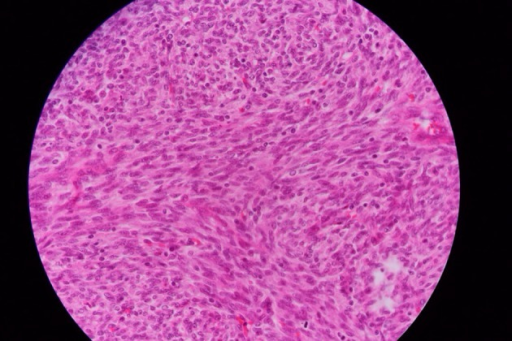 Proliferation of Neoplastic Cell