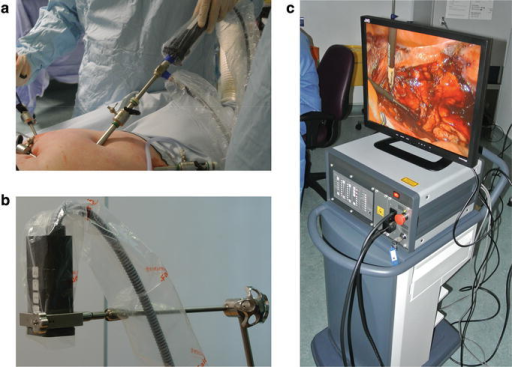 Fluorescence imaging system. a Laparoscopic camera attachment, b wide-field imaging head and c system control unit